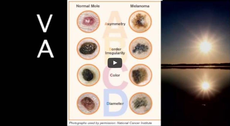 Luomien tutkiminen ja melanooma