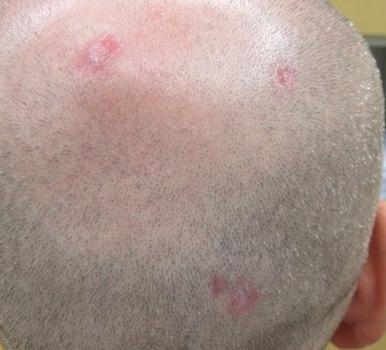 Päänahan ihottuma ja hiustenlähtö